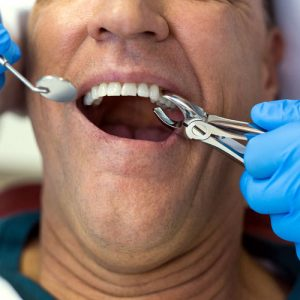 What to expect with tooth extractions