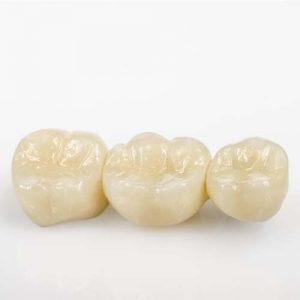 dental-crowns-bridges-bundle