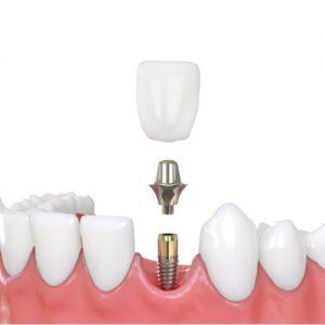dentalimplants3