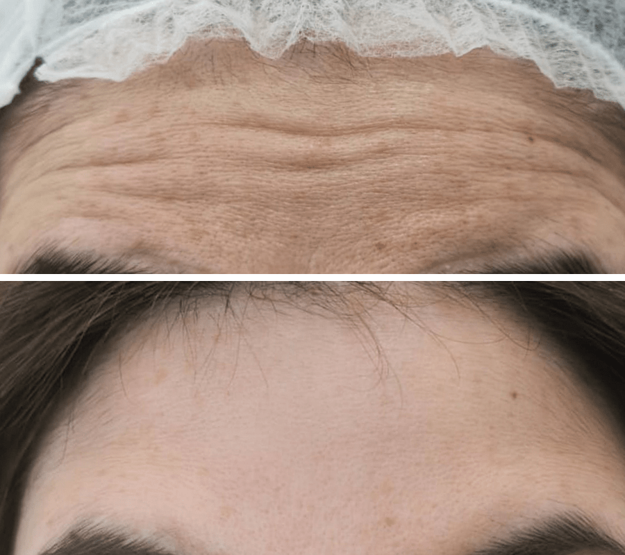 Wrinkles Before and After