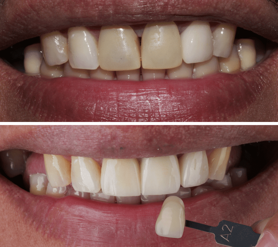 Crown Before and After