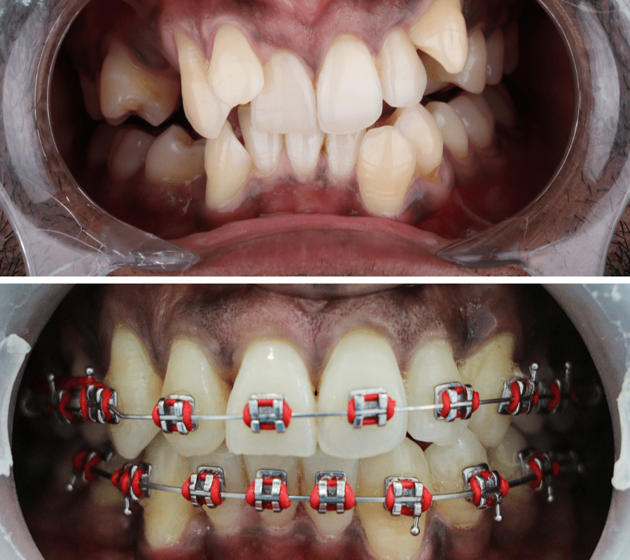 Metal Braces Before and After