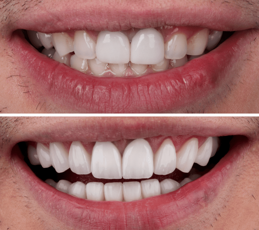 Hollywood Smile Before and After-2-min