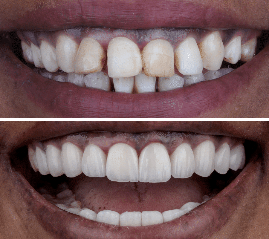 Hollywood Smile Before and After-3-min