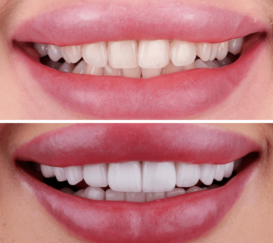 Hollywood Smile Before and After-min